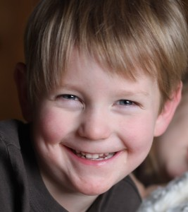 How I Managed My Son's Skin Problems - 2 Noah now 267x300 - How I Managed My Son's Skin Problems